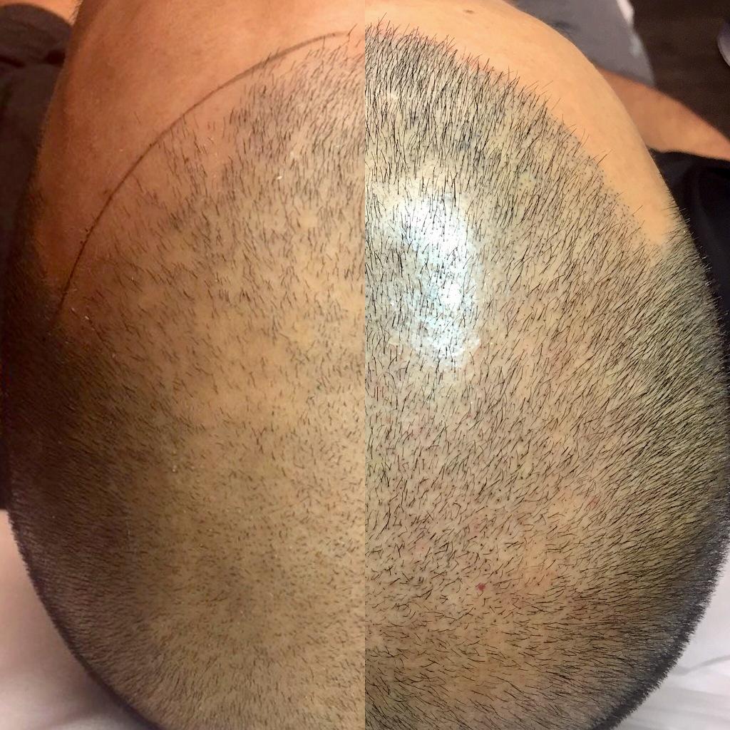 bald head men man amp scalp micropigmentation hair loss recovery
